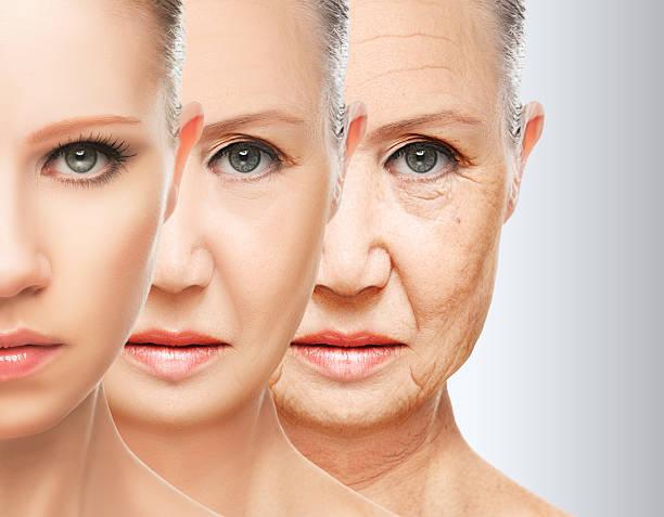 Skin-Wrinkles