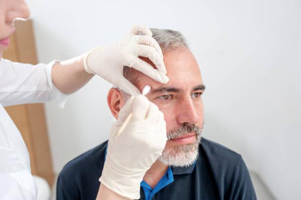 birthmarks-removal