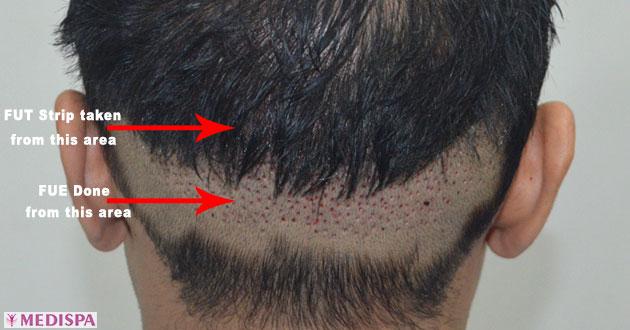 combine-fut-fue-hair-transplant