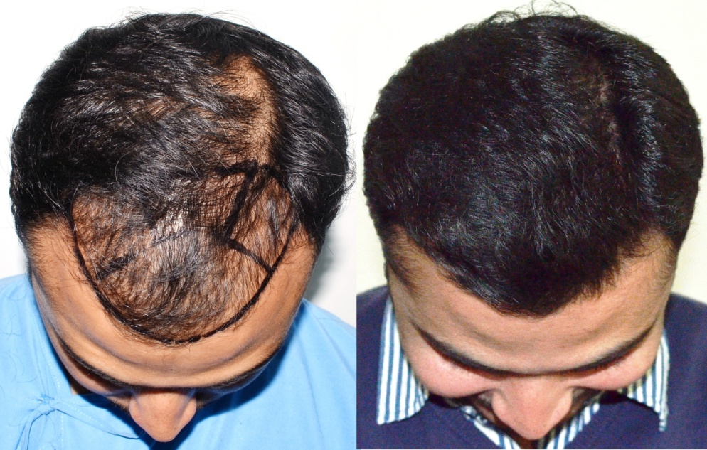 Image result for hair transplant modest in India