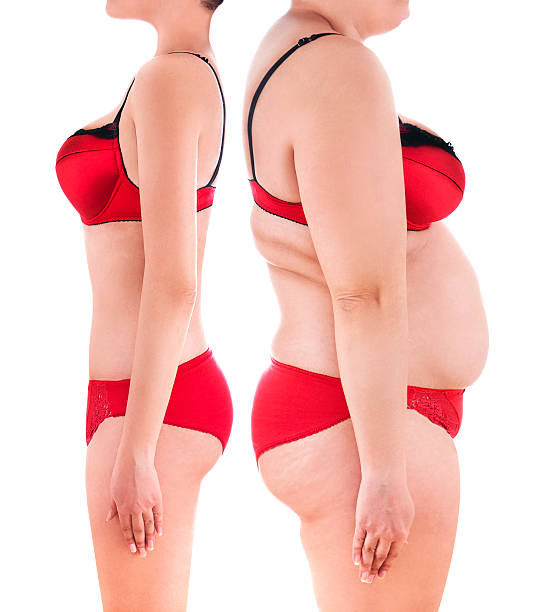 liposuction-fat-removal