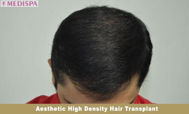 natural-hairline-design