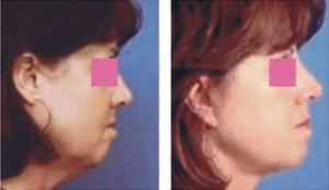 cosmetic surgery j