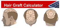 hair calculator