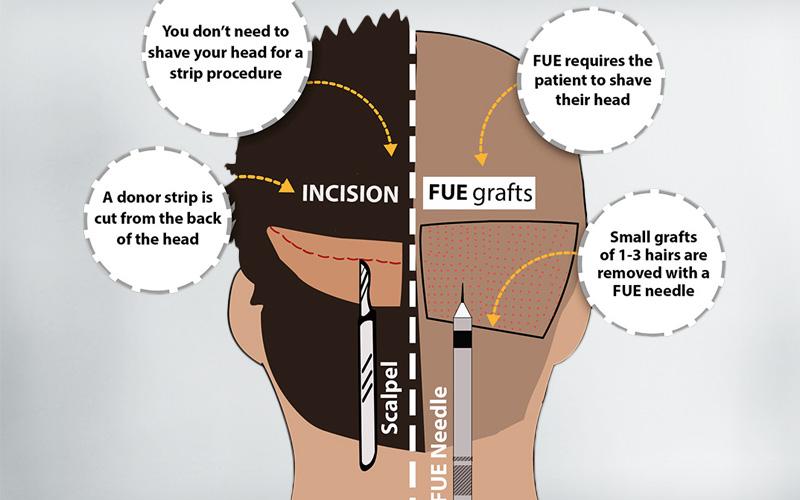 FUT - FUE hair Transplant
