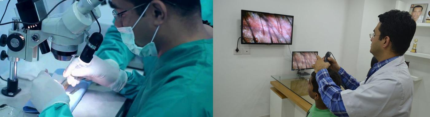 training-Hair-Transplant