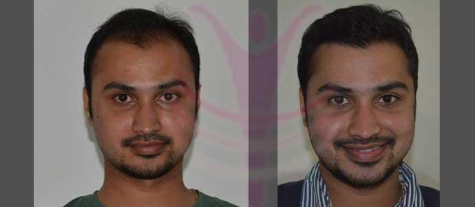 Age 28 Implanted-4380 FUT Grafts