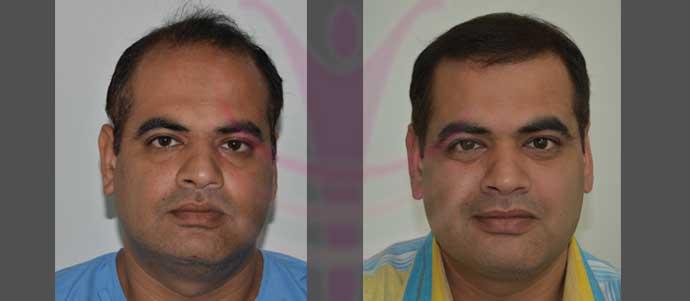 Implanted-4466 FUT Grafts