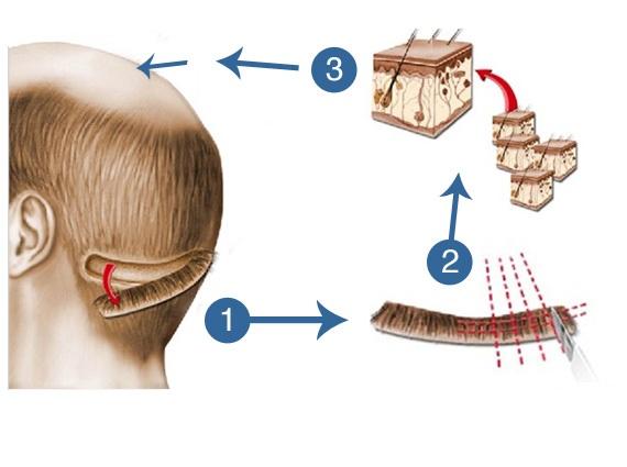 fut-hair-transplant-surgery