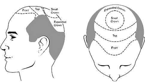 hair transplant treatment cost