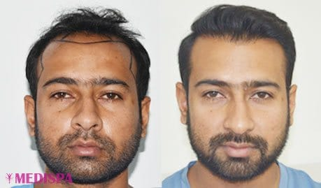 Cost of hair transplant top hair transplant center delhi jaipur some examples of the aesthetic results of our patient can be seen checked through the following link to photographs pmusecretfo Image collections