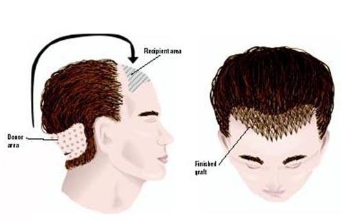 hair-transplant-delhi