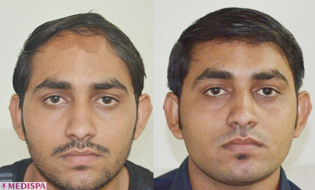 after-before-burn-hair-transplant