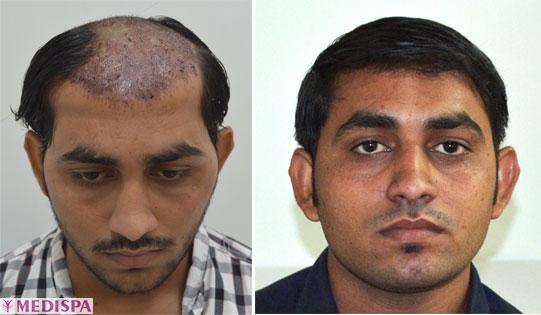 burn-hair-transplantation