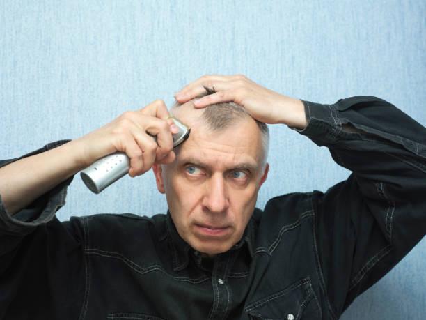cost-hair-trasnplant