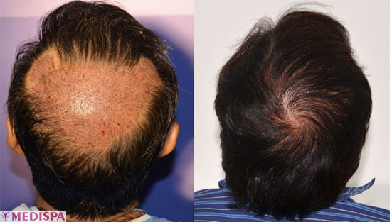 crown-vertex-hair-transplant