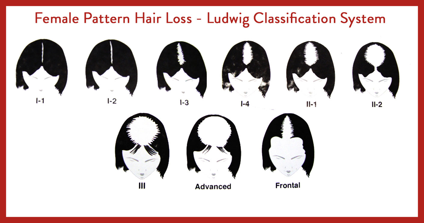 female-hari-loss-pattern-ludwig