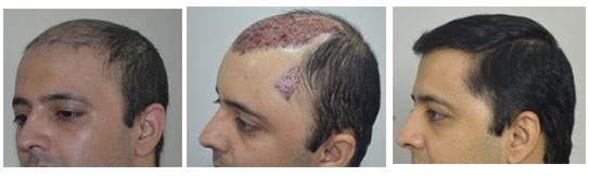natural-hairline-hair-transplant