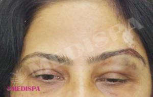 eyebrow-hair-transplant-jaipur