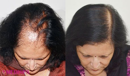 Image result for hair transplant in Delhi
