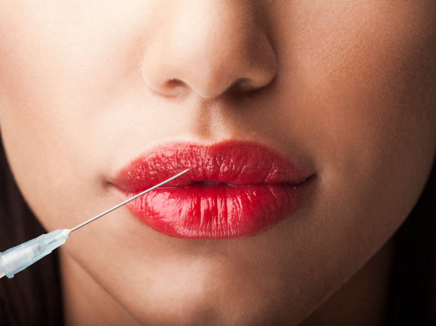 Lip-Augmentation