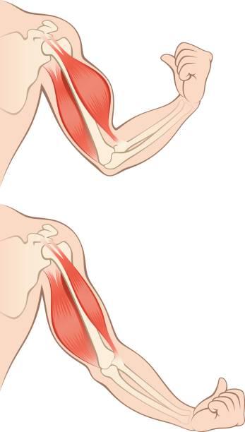 brachial-plexus-surgery