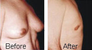 cosmetic-surgery-male-breast