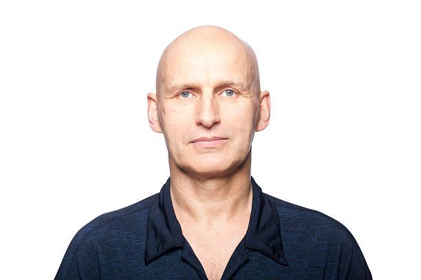 hair-transplant-in-europe