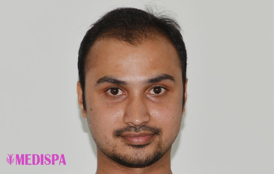 Before-Hair Transplant Results