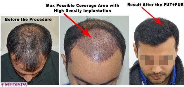 Mega Giga Session Top Hair Transplant Center Delhi Jaipur Hair