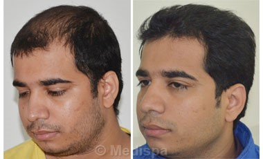 Image result for hair transplant in india