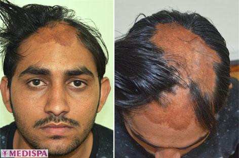 Burn Hair Transplant Top Hair Transplant Center Delhi Jaipur