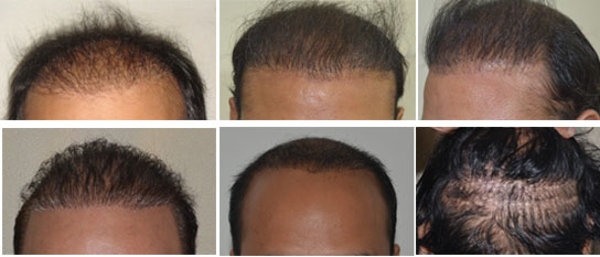 Wrong Bad Hair Transplant Correction Top Hair Transplant Center