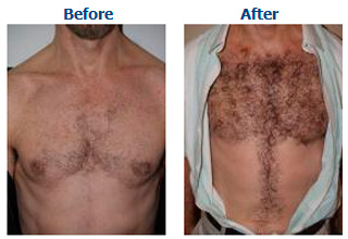 Body Hair Transplant Top Hair Transplant Center Delhi Jaipur
