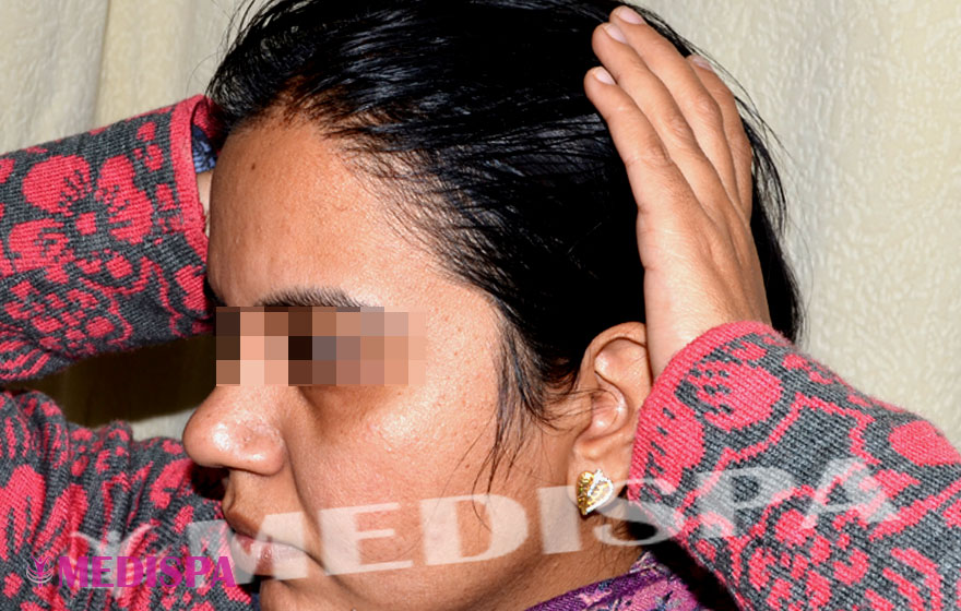 Best Female Hair Transplant Results Mumbai India Top Hair