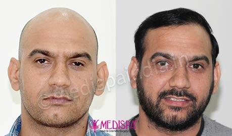 Best Hair Transplant Surgeons | Hair Transplant Doctors