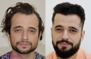 Hair Transplant In Turkey Hair Transplant Turkey Cost
