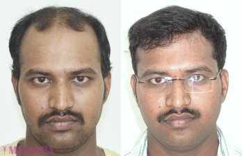 Top Hair Transplant Center Delhi Jaipur Hair Transplant Cost India