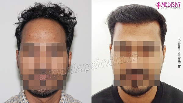 What To Expect At Your First Hair Transplant Consultation