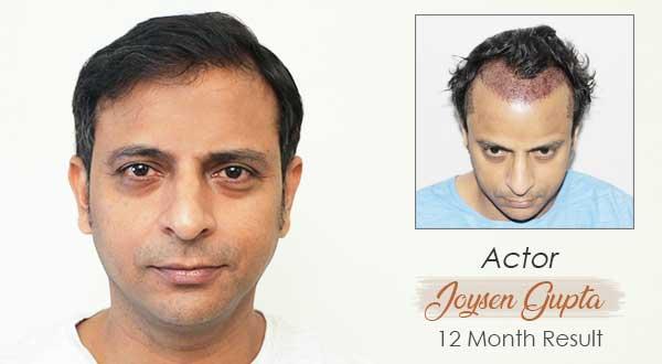 Top Hair Transplant Center Delhi   Jaipur   Hair Transplant