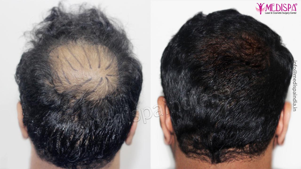 burn hair transplant india