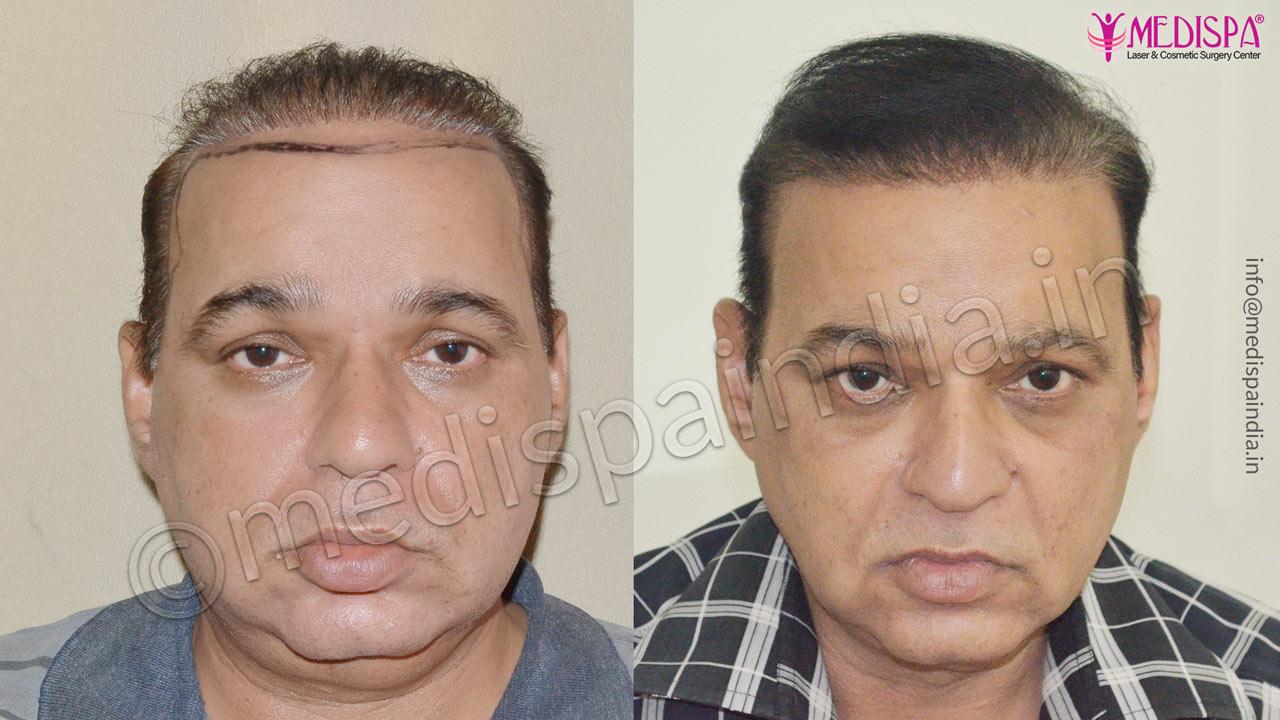 bad hair transplant repair india