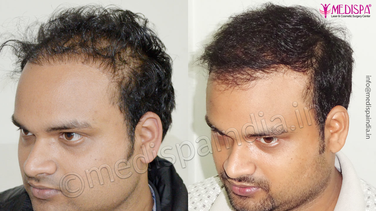best hair transplant results in india