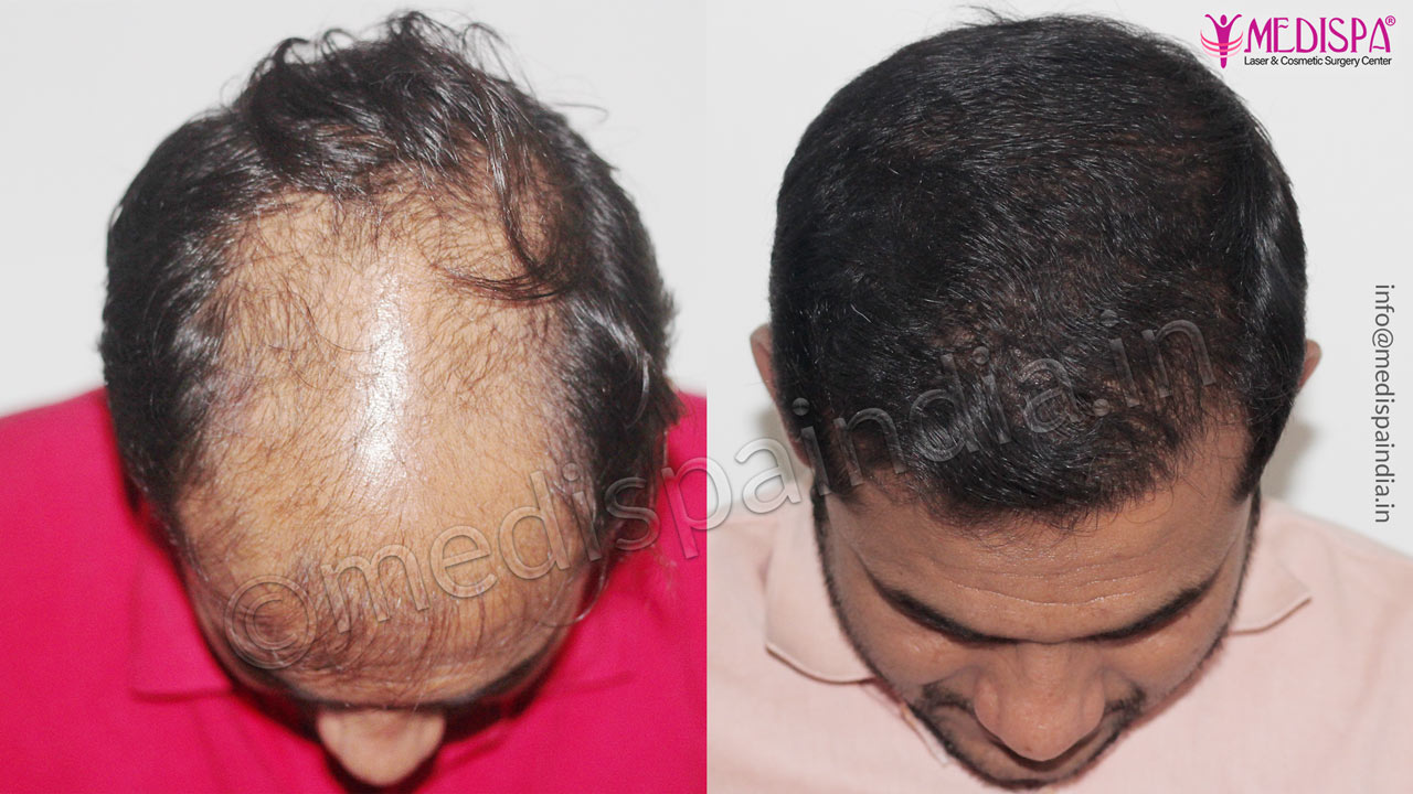 hair transplant cost in dubai