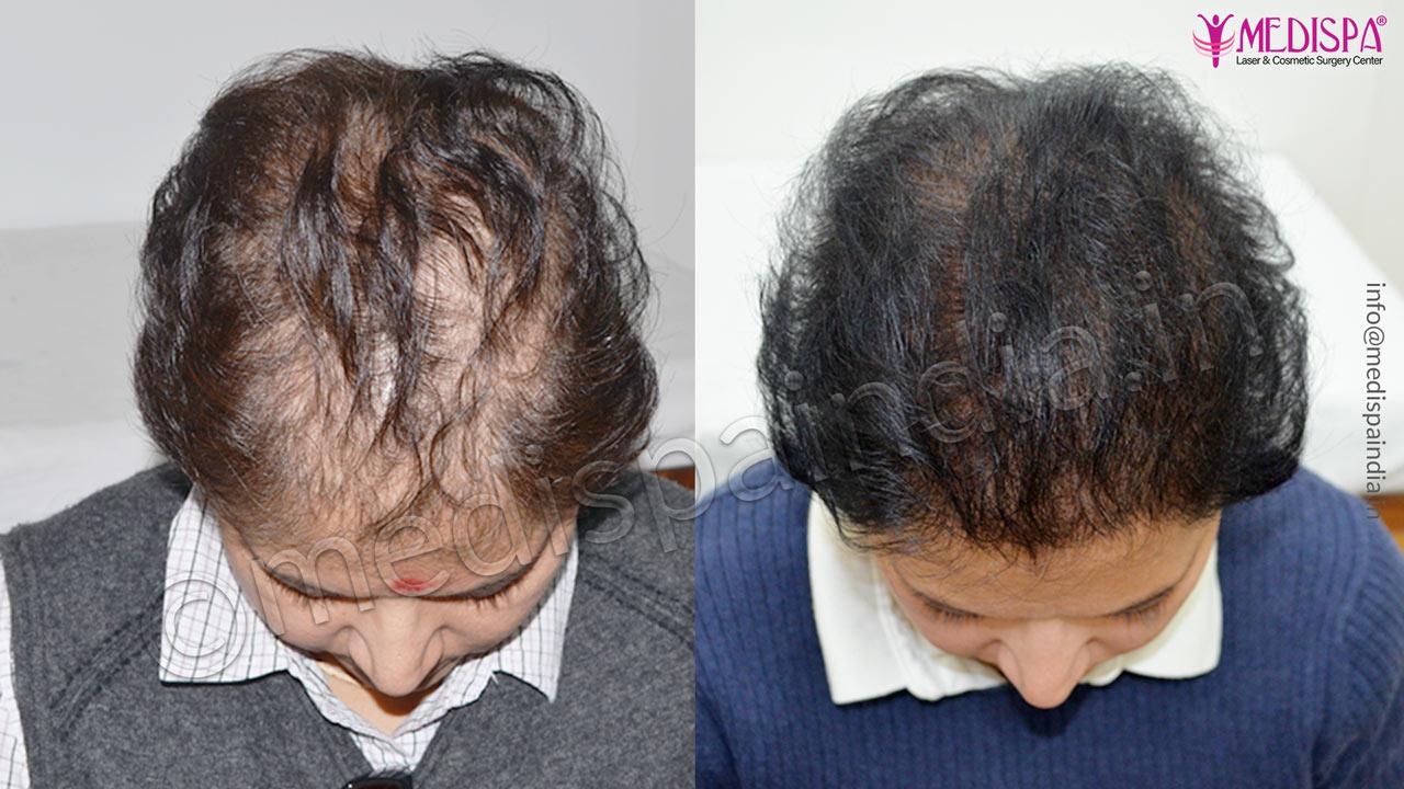 female hair transplant cost delhi