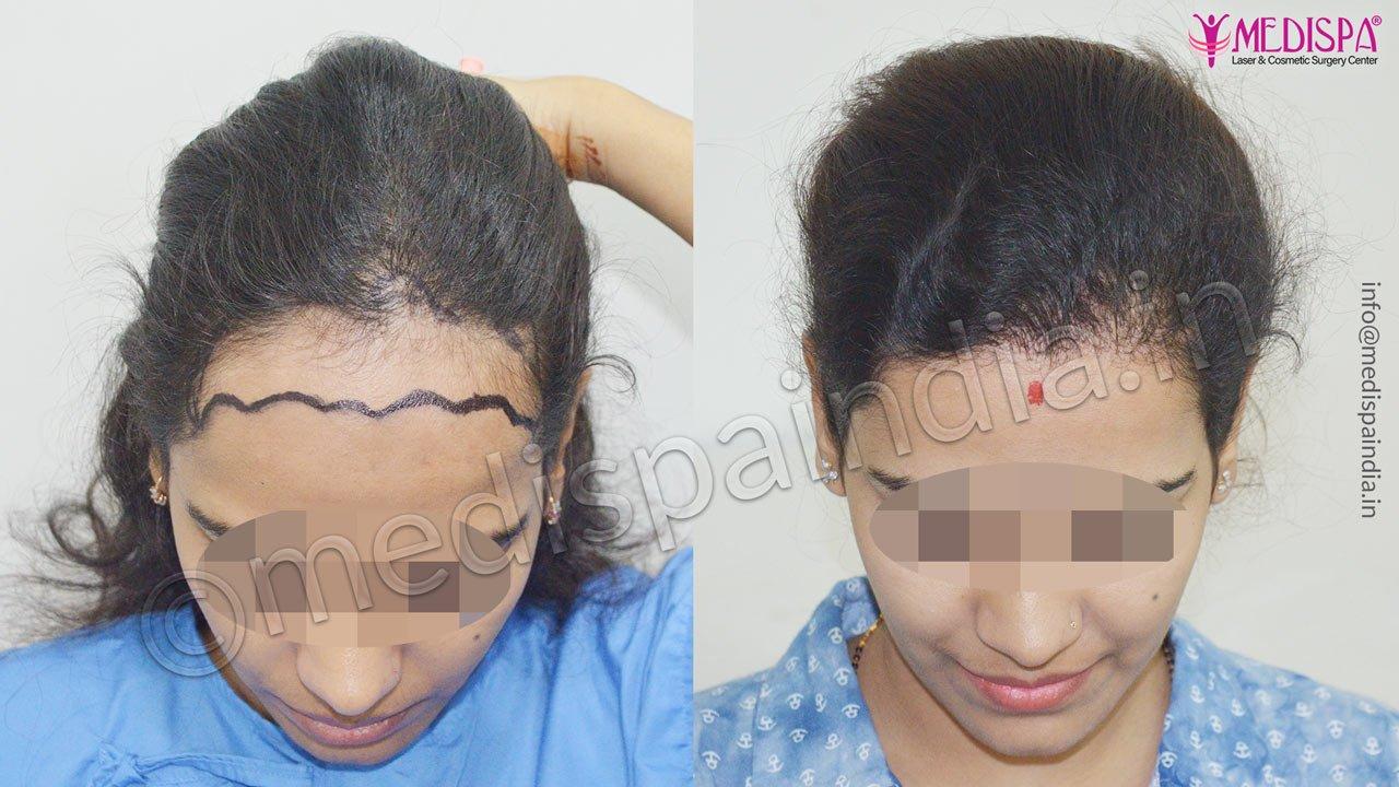 female hair transplant in delhi