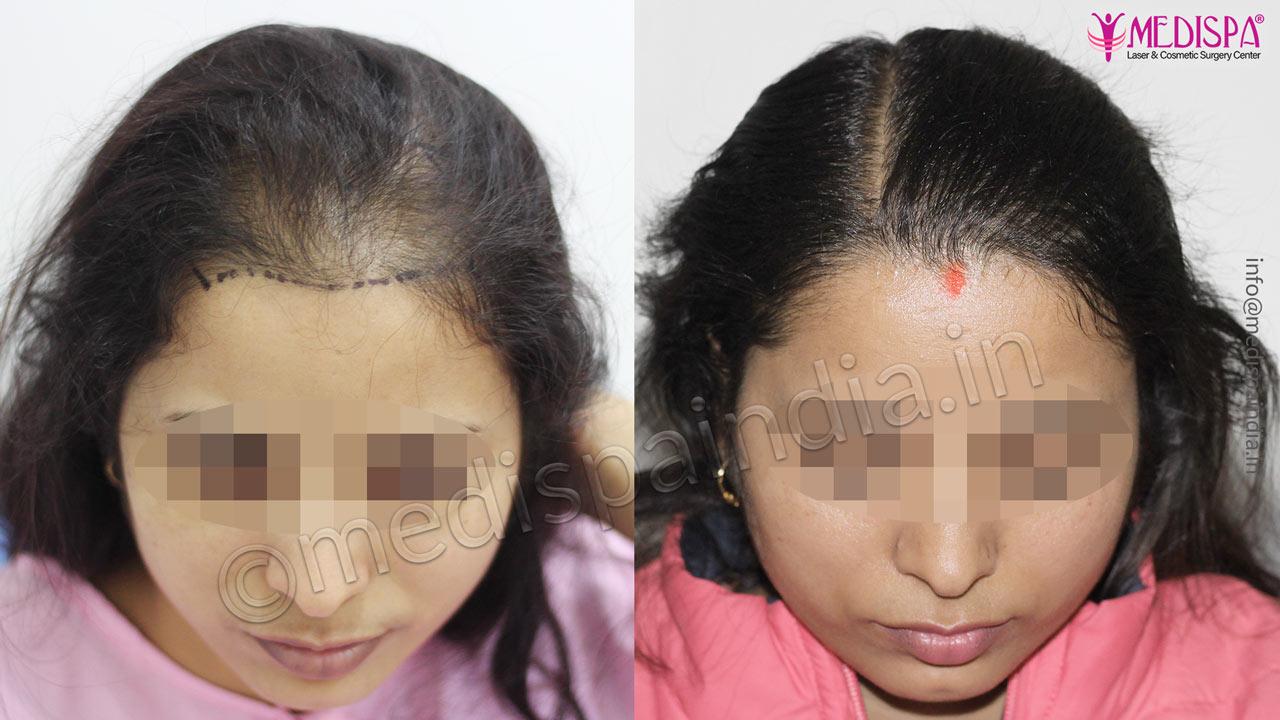 female hair transplant results delhi