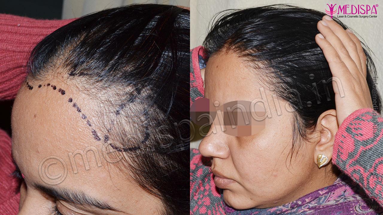 female hair transplant results jaipur