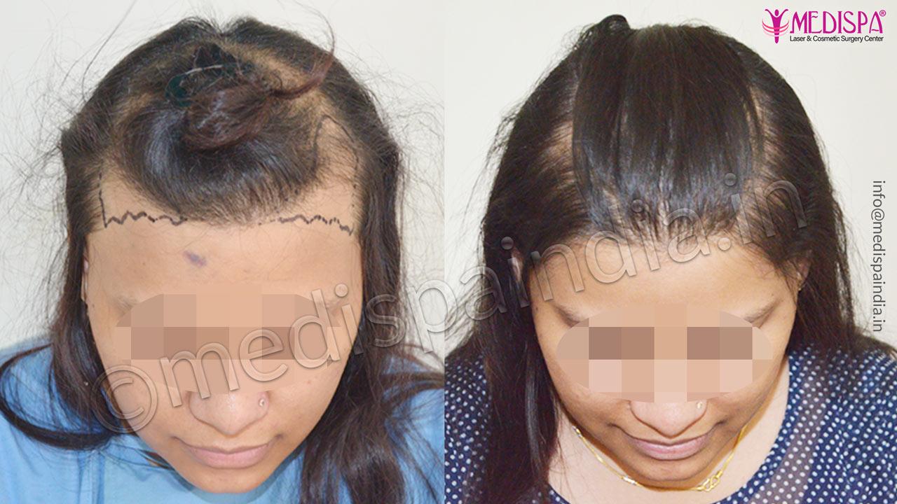 hair transplant clinics in singapore