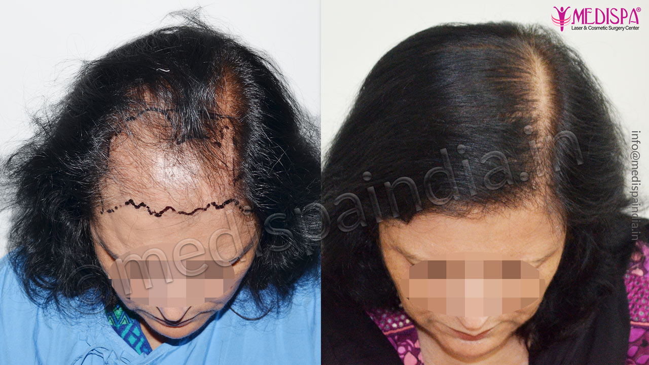 hair transplant doctors in greater kailash south delhi